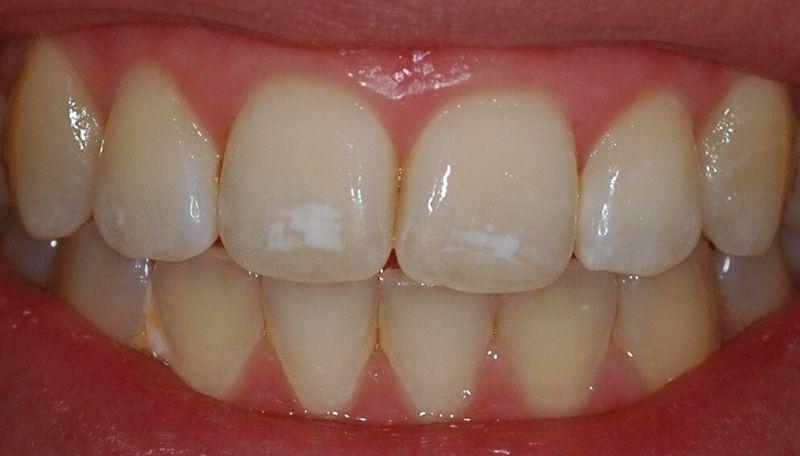 Как избавиться от белых пятен на зубах в домашних условиях
