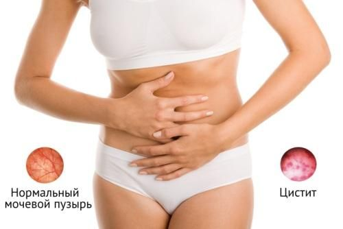 Цистит симптомы и лечение