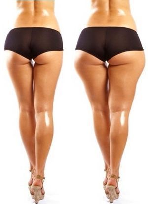 Диета для похудения ног и бедер