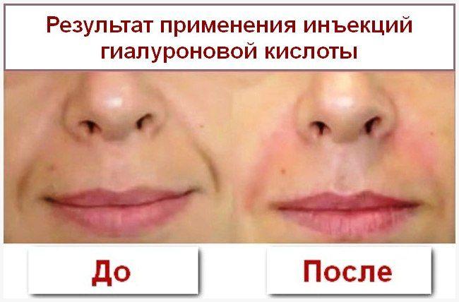 Гиалуроновая кислота противопоказания