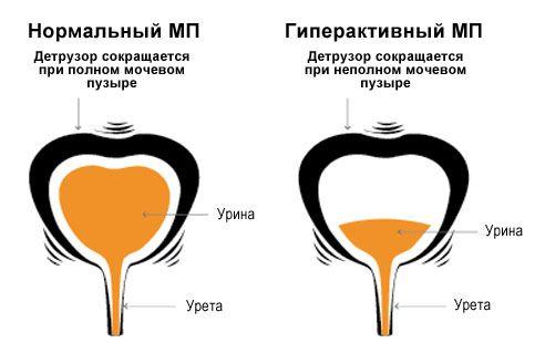 Гиперактивный мочевой пузырь