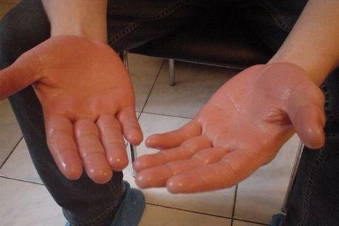 Гипергидроз ладоней лечение