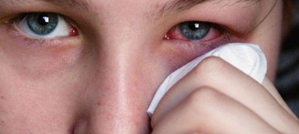 Глазные капли от раздражения и покраснения