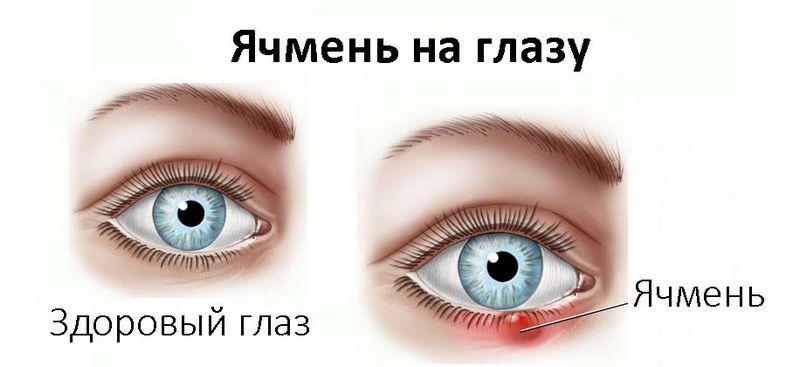 Ячмень на глазу как лечит