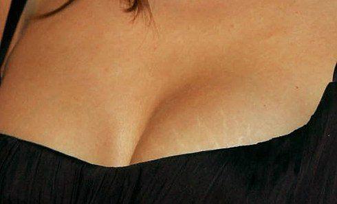 Как избавится от растяжек на груди
