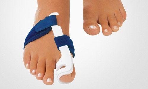 Как лечить шишки на ногах