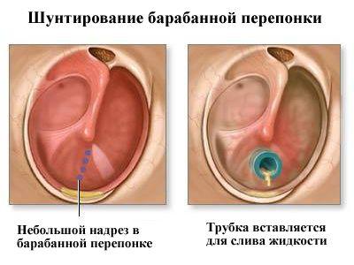 Как промыть ухо в домашних условиях