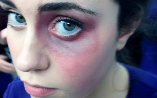 Как убрать синяк под глазом от удара