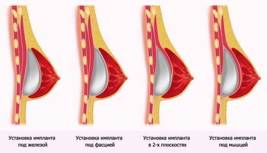 Как увеличить грудь без операции