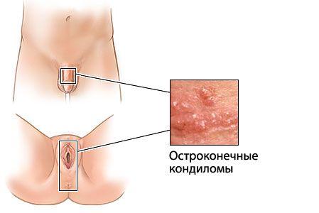 Бородавки и лечение средствами для беременных