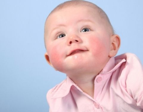Красные щеки у ребенка причины