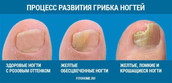 Кто избавился от грибка ногтей на руках