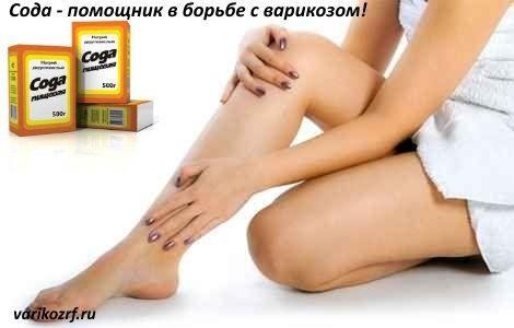 Лечение варикоза в домашних условиях
