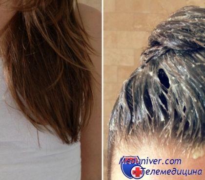 Маска для волос из дрожжей