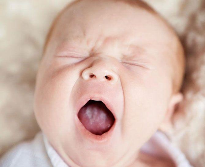 Молочница у детей лечение