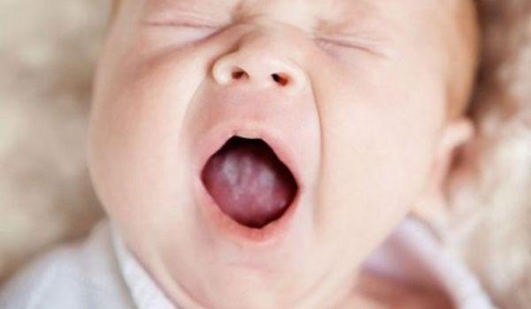 Молочница у ребенка во рту