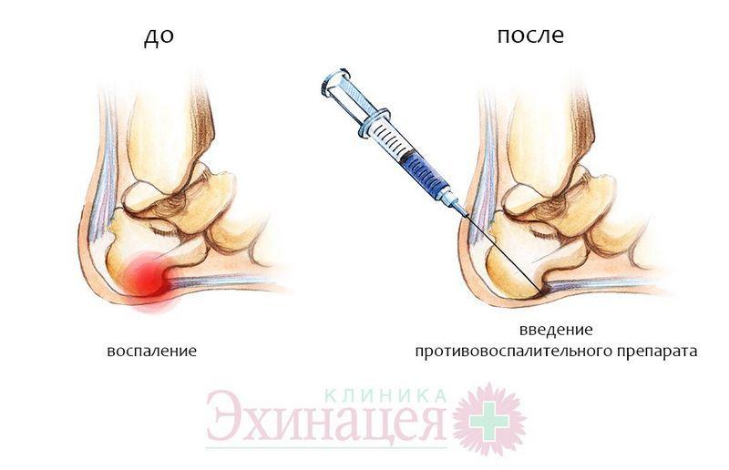 Пяточная шпора симптомы и лечение