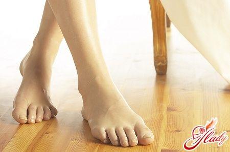 Потливость ног лечение