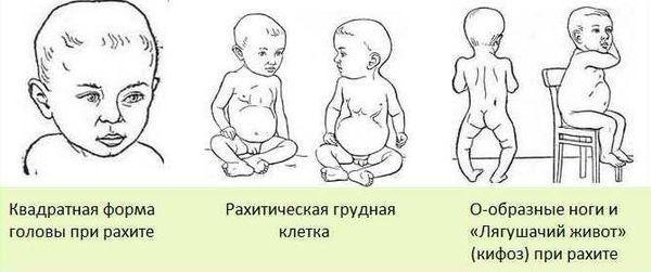 Признаки рахита у детей до года