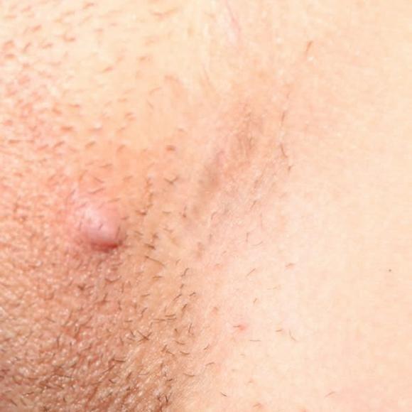 Прыщи на половых губах