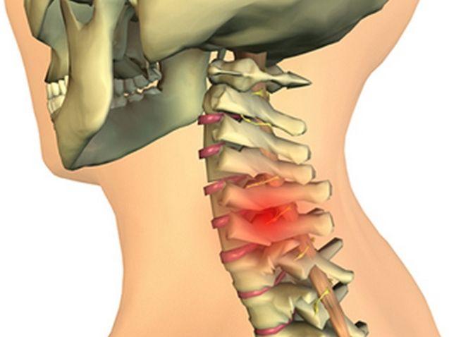 Шейный хондроз симптомы и лечение