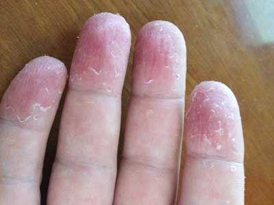 Почему облазит кожа у ребенка на пальцах