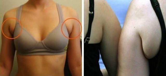 Убрать жир под мышками упражнения