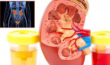 В моче повышены эритроциты причины