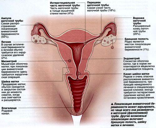 Внематочная беременность признаки