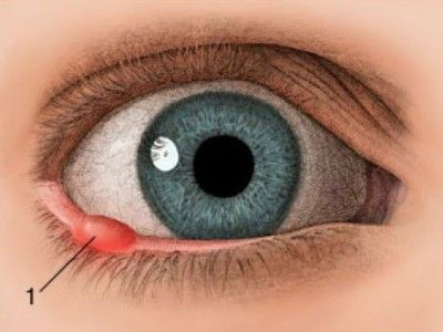 Жировик в глазу