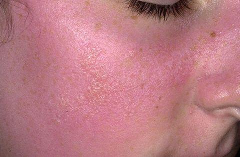 Аллергия на солнце чем лечить