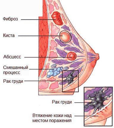 Диффузная мастопатия молочных желез