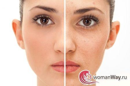 Гиперемия кожи лица