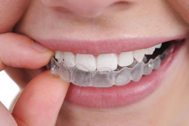 Как выровнять зубы в домашних условиях подростку — Зубы