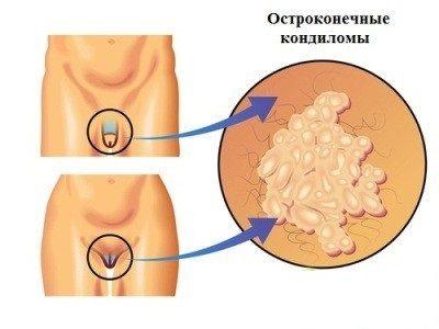 Кондиломы при беременности