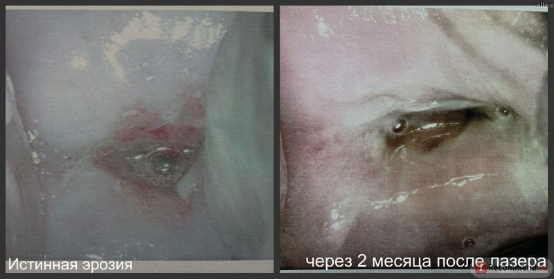 Лечение эрозии шейки матки лазером