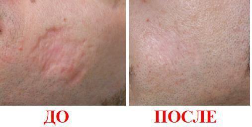 Лечение рубцов и шрамов