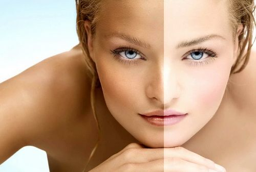 Отбеливание кожи лица