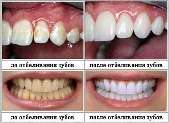 Отбеливание зубов перекисью водорода
