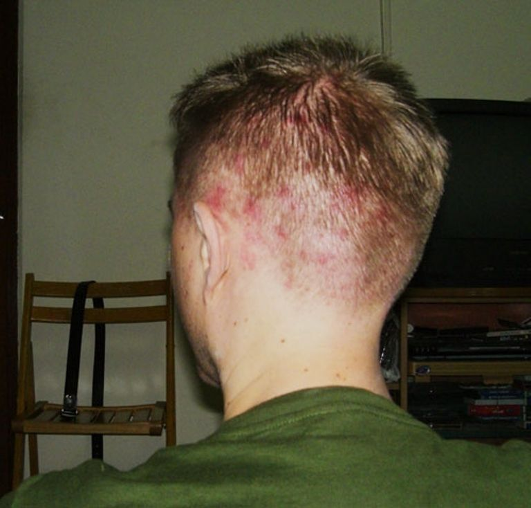 Прыщи на голове в волосах