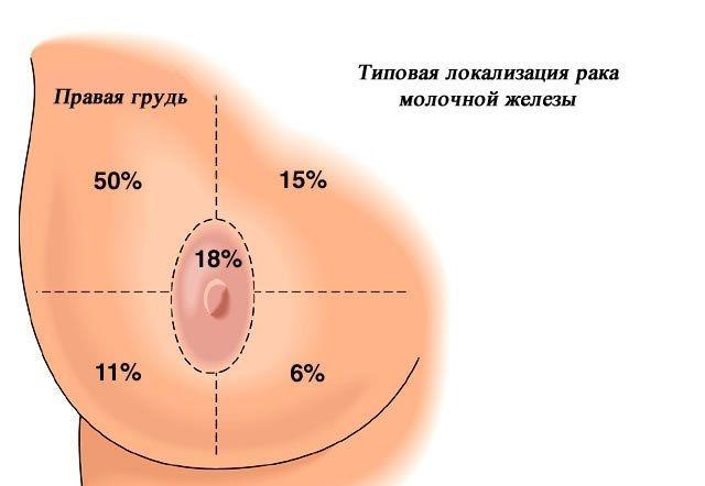 Рак грудной железы симптомы