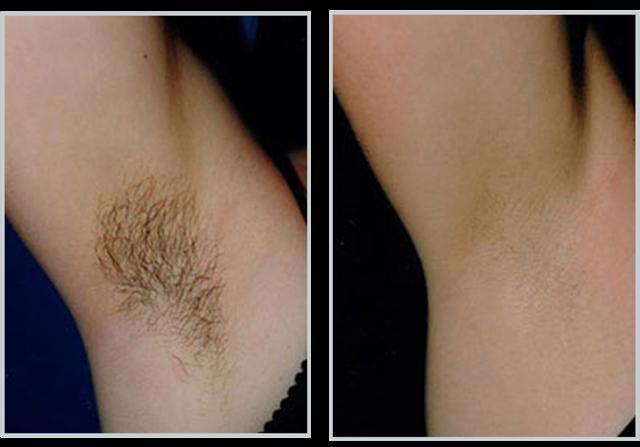 Риванол для удаления волос