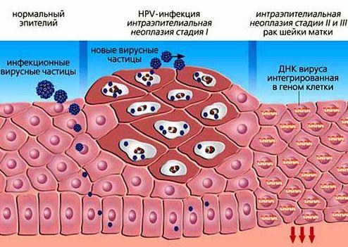 Вирус папилломы человека лечение