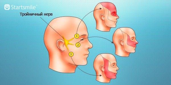 Воспаление тройничного нерва симптомы и лечение