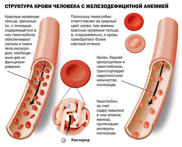 Железодефицитная анемия симптомы и лечение